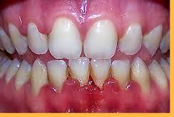 DENTES: Gengivite não tratada pode evoluir para periodontite.