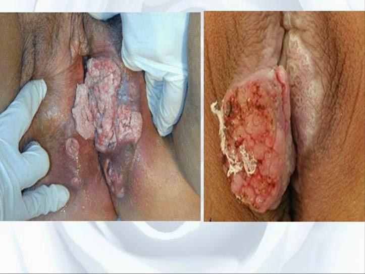 Image pengobatan kanker serviks alternatif