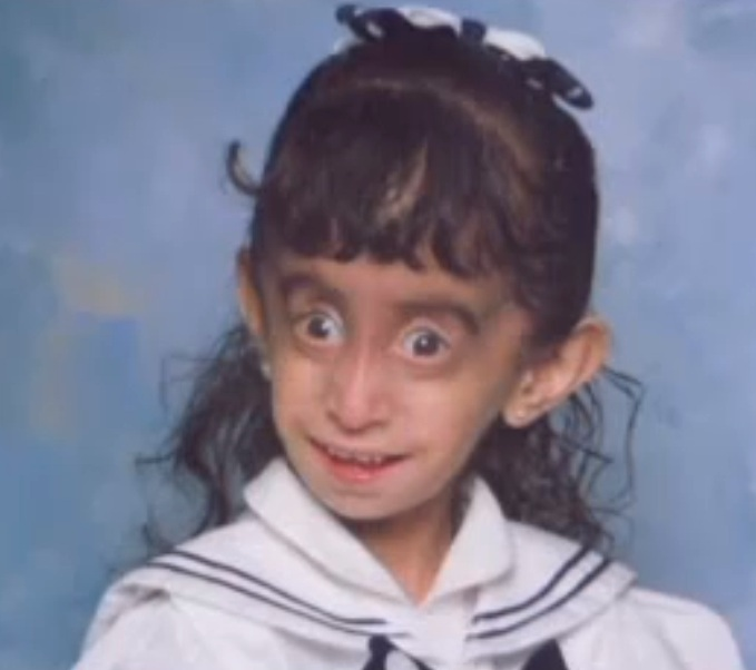 Welcome To Vanessa Michael's Blog: World's Ugliest Woman ...