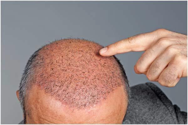 Hair Transplant In Surat: Best Technique For Hair Transplant – DHI ...