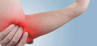 Como prevenir a Epicondilite lateral no Tênis?