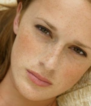 How to get rid of patchy face skin naturally
