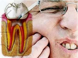 gigi ngilu