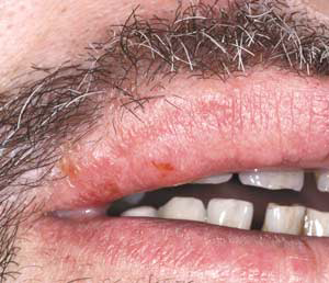 nursing care plan for herpes zoster Phn is defined as herpes zoster pain that continues for more than 30 days after the onset of skin healing 51 phn is the most common and most distressing sequela of herpes zoster in patients with intact immune systems 52 the incidence and duration of phn increase as patient age increases 53 phn can affect 8% to 70% of herpes zoster patients.