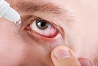 Inflammatory diseases of the eye