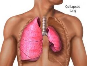 Akciğer Büzüşmesi, Atelektazi