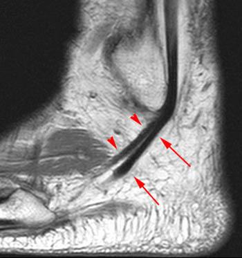 Mri Musculo Skeletal Section Normal Anatomy Of Peroneus Tendon On Mri