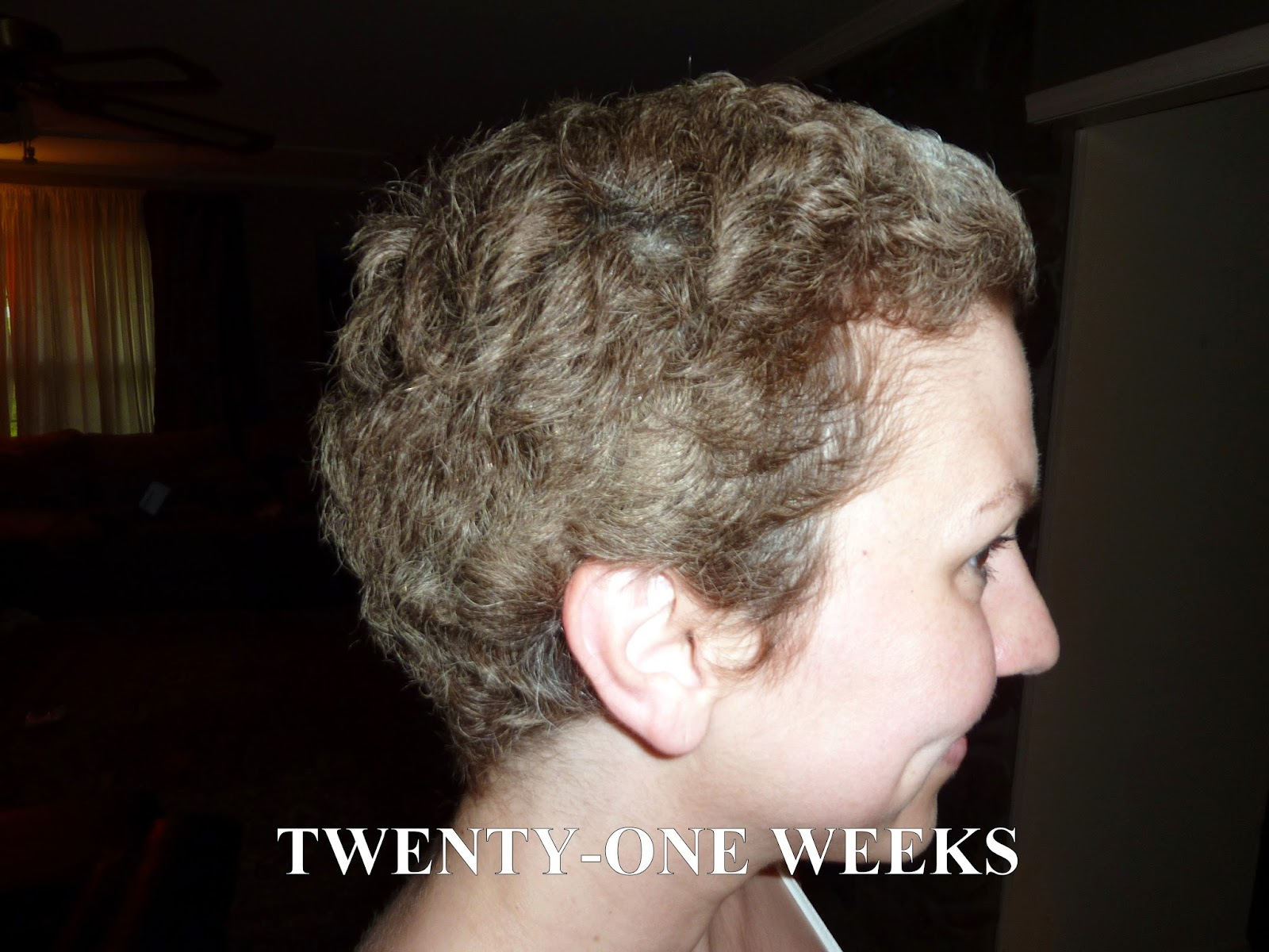 Pictures Of Stages Of Hair Growth After Chemo | 26 year