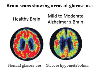 Feeding the Alzheimer's Brain | Alzheimer's Reading Room