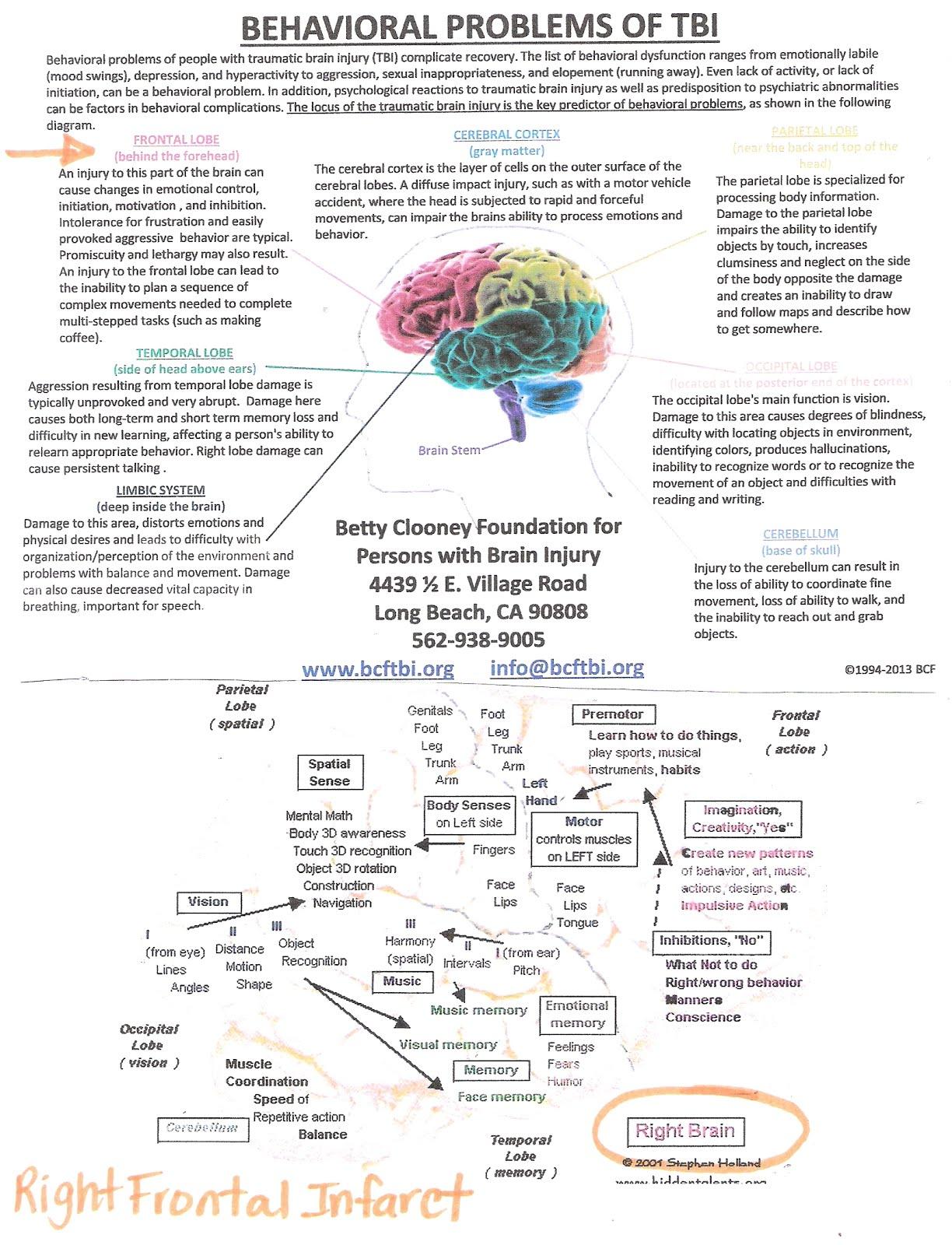 Understanding Kearstyn's Brain