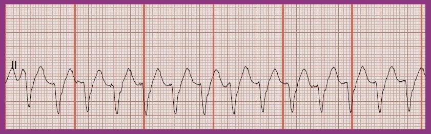 Float Nurse: EKG Rhythm Strip Quiz 191 Ventricular Tachycardia Rhythm Strip