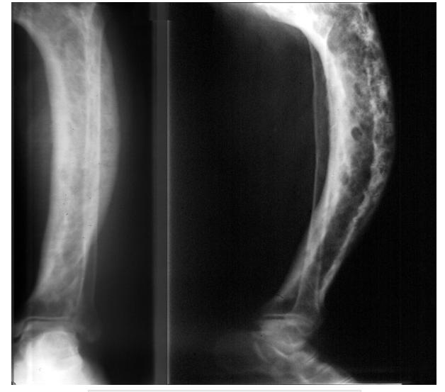 Pagets Disease Paget disease of bone in a