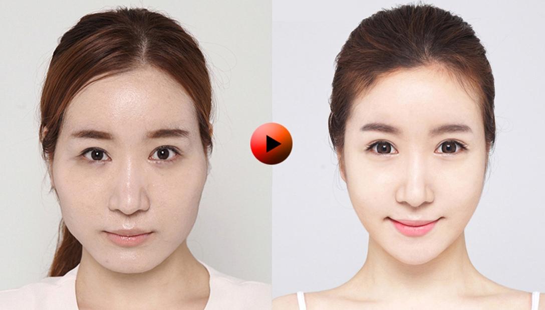 mega+clinics+facial+contouring+surgery.jpg