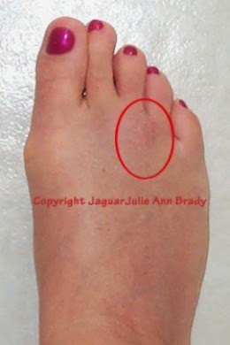 mortons neuroma healing scar of jaguarjulie right foot