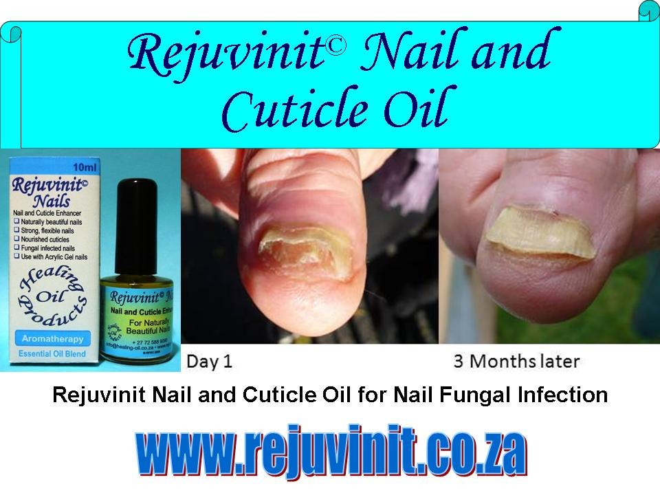 Fungal Infection under Nails and Toenails