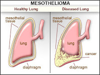 Treatment Mesothelioma