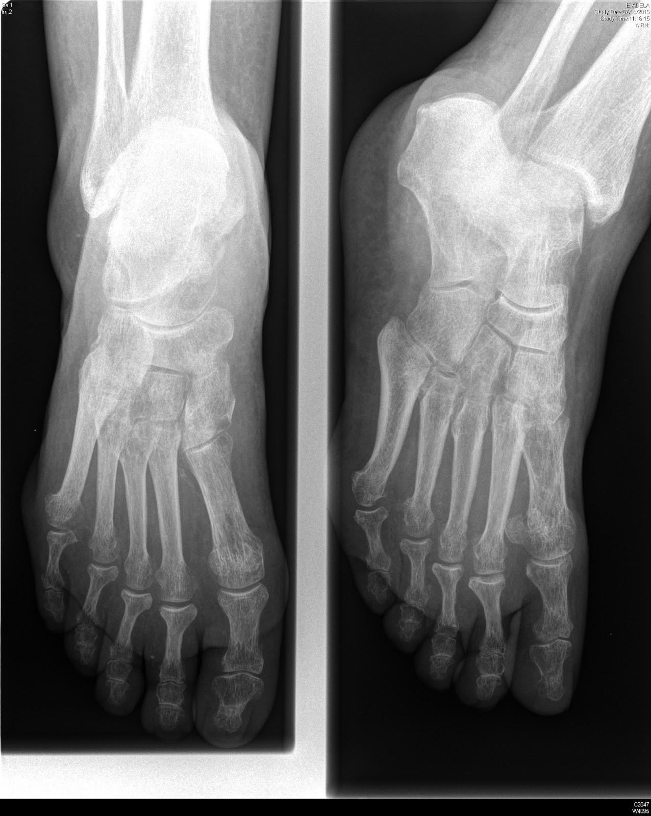 Tecnicos Radiologos: Pie diabético: hallazgos en Diagnóstico por ...