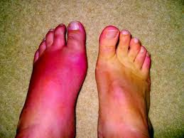 uric acid levels in gout gout relief allopurinol cure for gout toe