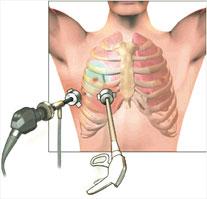 Akciğer Kanseri Teşhis ve Tedavi
