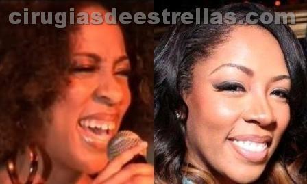 K. Michelle antes y después
