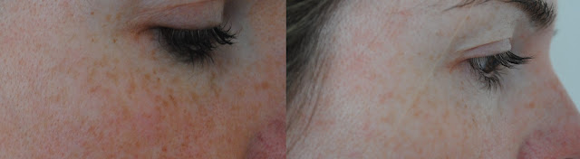Image Skincare Regime - Right Side of Face Before (left) and After (right)