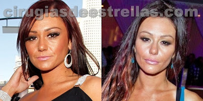 jwoww antes y despues
