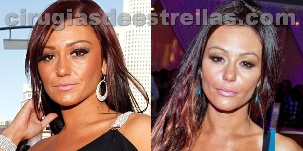 Jwoww antes y después