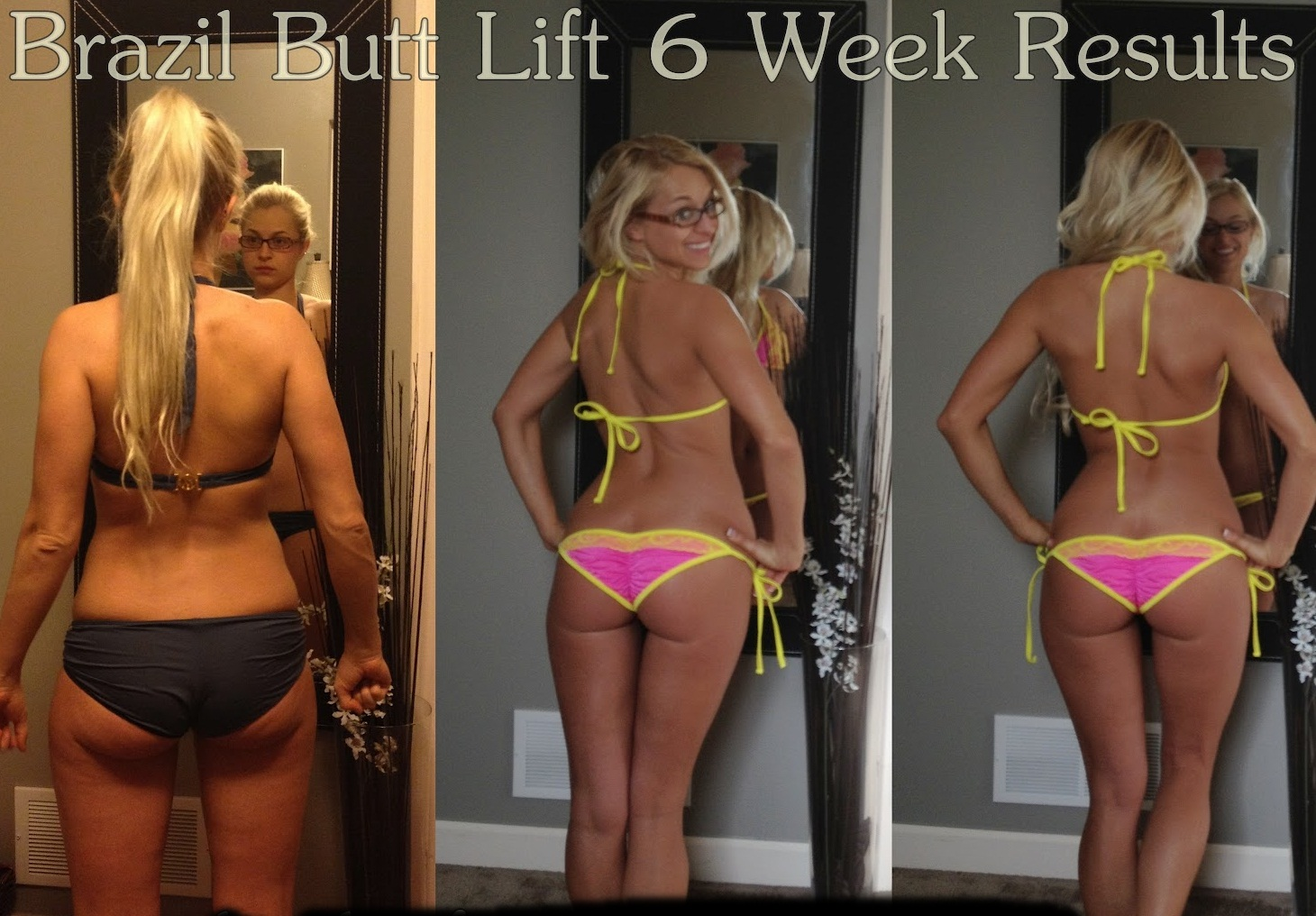 Bikini Fit: Brazil Butt Lift Results