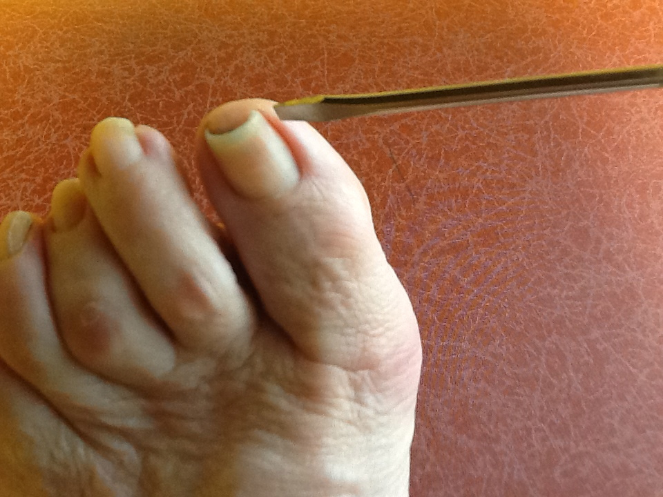 Here Is A Typical Toenail That Gets Ingrown Even With Loose Shoes And Socks