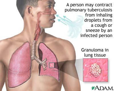 matarasakata: Mengapa Penyakit TBC susah disembuhkan?