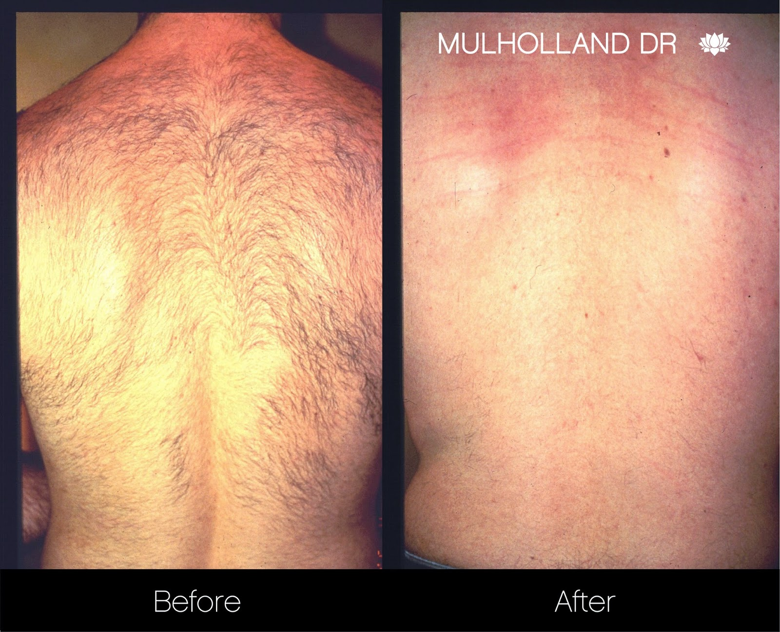 Laser hair removal before and after picture at Spamedica Toronto