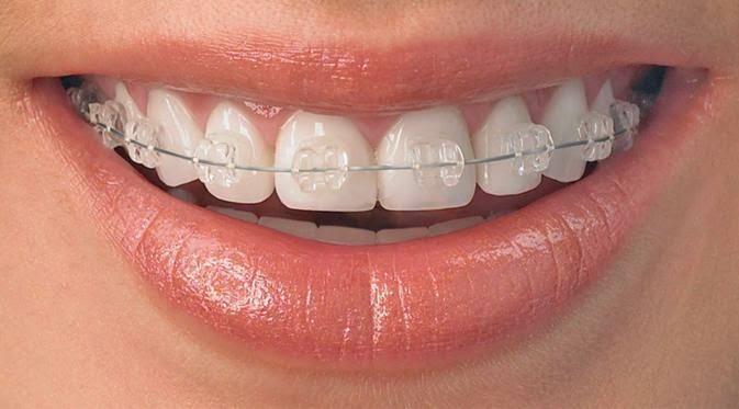 pasang kawat gigi cabut gigi