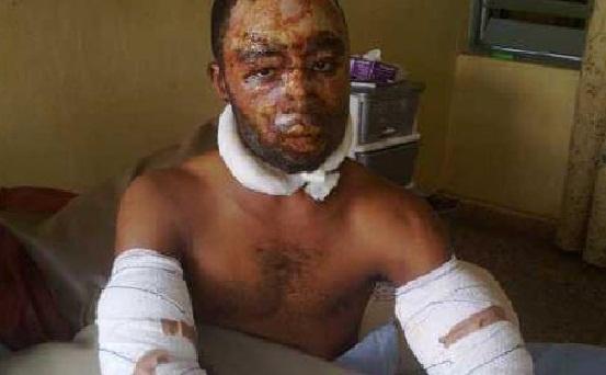 survivor of the Benin-Ore fire incidence chiomaandy.com