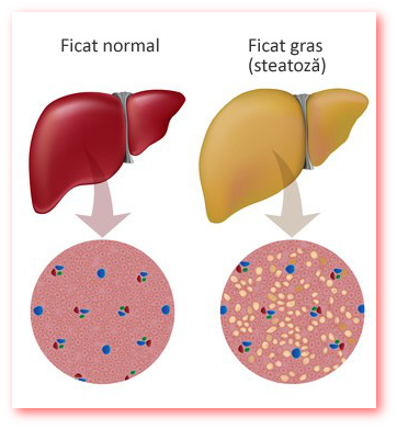 Atentie la ficatul gras!