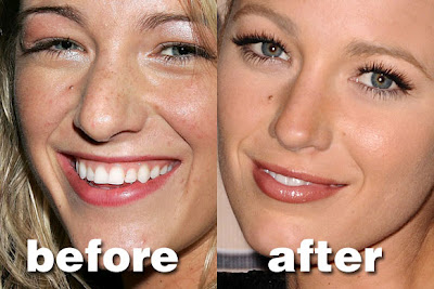 Celebrity Plastic Surgery UNCUT!: Blake Lively's Real Life ... Blake Lively Nose