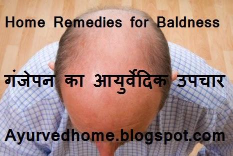 Baldness Cure with Nature Ganjapan, गंजेपन का आयुर्वेदिक उपचार , Baldness Cure, Cure Ganjapan with nature, Ayurvedic treatment for baldness, Ganjepan se Chutkara, ganje sar par baal, solution for baldness