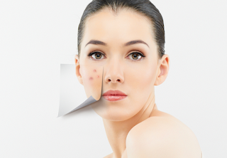 Why use witch hazel for acne?