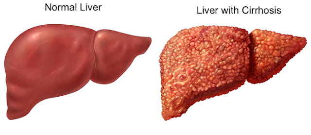 यकृतशोथ या हेपेटाईटिस रोग के कारण लक्षण और उपचार