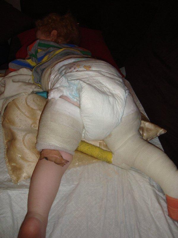 The Peas Pod: Nappy (diaper) changing in a Spica cast: emmapeaspod.blogspot.com/2012/03/nappy-diaper-changing-in-spica...