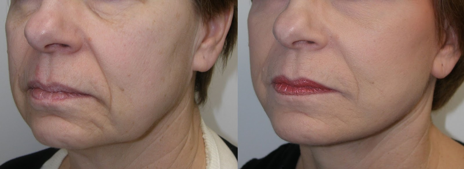 Skin Care without Cosmetic Dentistry