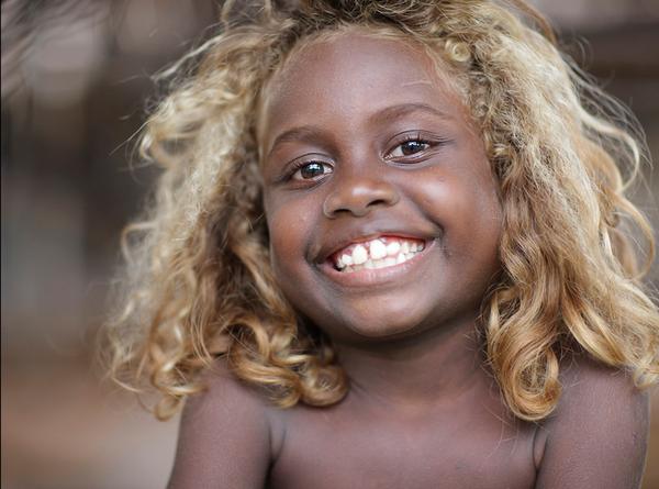 10% da população negra das Ilhas Salomão tem cabelo loiro