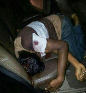 Gambar lelaki yang ditembak di kepala