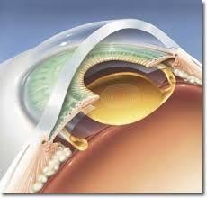 Intraocular lens(IOL)