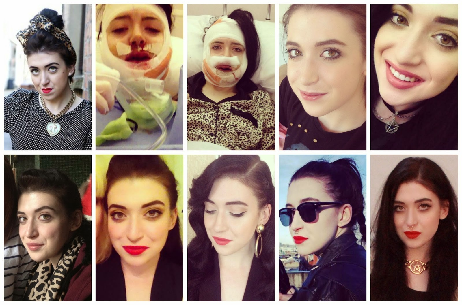 http://thunderandthreads.blogspot.ie/2014/03/my-double-jaw-surgery-experience-one.html