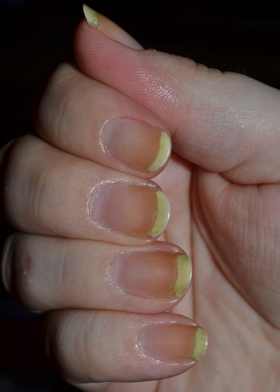 Hap Hap Happy Hands: Nail Care: Cuticle Remover