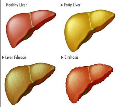 Pengertian Penyakit Fatty Liver, Gejala, Penyebab dan Pengobatan