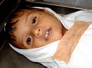 صورة لشهيد فلسطيني ميت وكأنه حي!