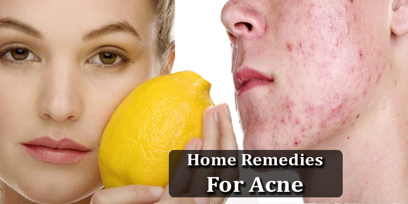 the best remedy for your acne problems
