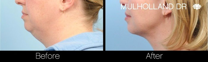 Before and after photo of Toronto patient who had neck liposuction