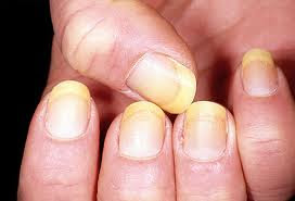 Photos Of Yellow Nail Pictures Images Photo